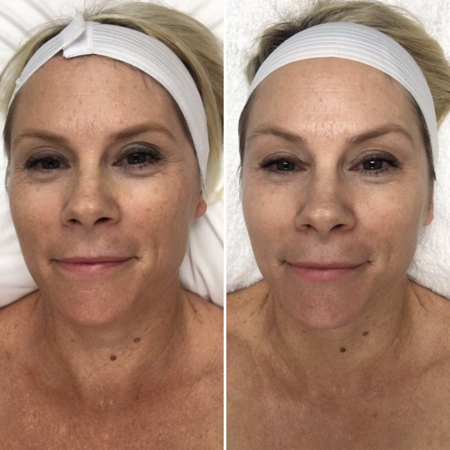 Picture on the Left: Before laser treatments. Picture on the Right: Four Genesis and XEO Laser treatments over a four month period.